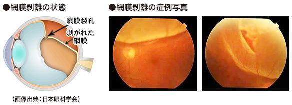 裂孔 原因 網膜